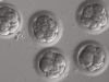 Did CRISPR really fix a genetic mutation in these human embryos?