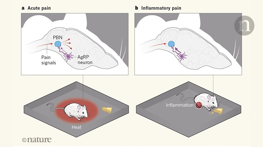 Brains In Pain Cannot Learn >> Hunger Is A Gatekeeper Of Pain In The Brain