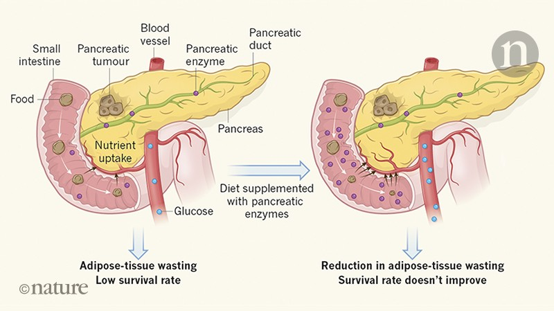 Weighing In On Weight Loss In Pancreatic Cancer