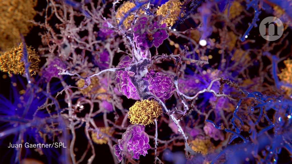 Stroke drug shows promise for Alzheimer's disease