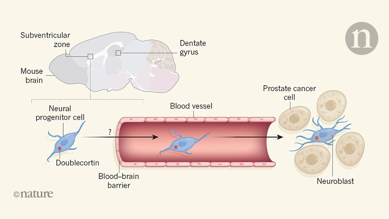 Nerve cells from the brain invade prostate tumours