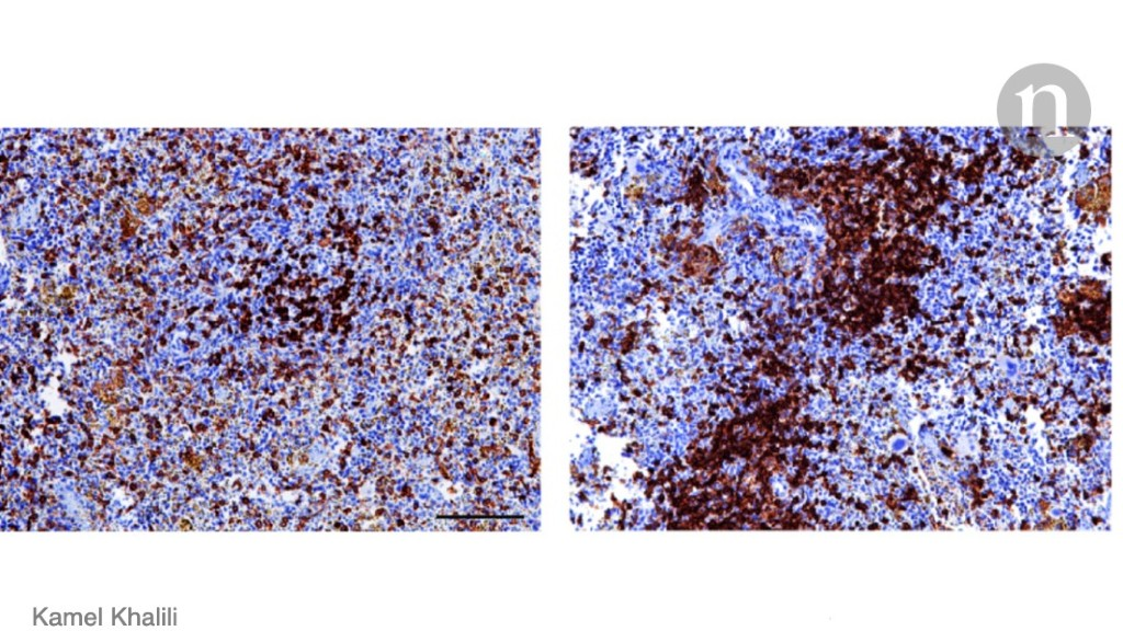 CRISPR helps to rid mice of HIV