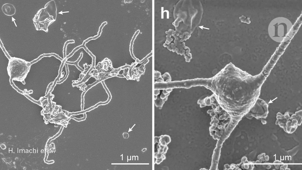 Scientists glimpse oddball microbe that could help explain rise of complex life