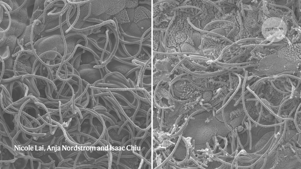 'Stomach-ache' neurons rush to the rescue when bacteria invade