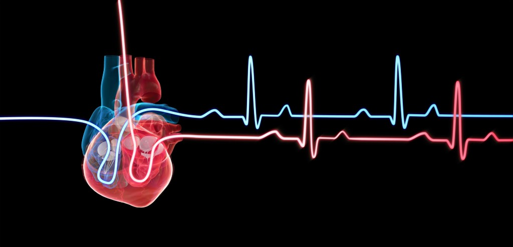 Genomic discoveries at the heart of cardiovascular disease