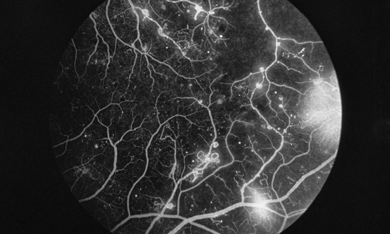 Fluorescence angiogram of retina with diabetic retinopathy