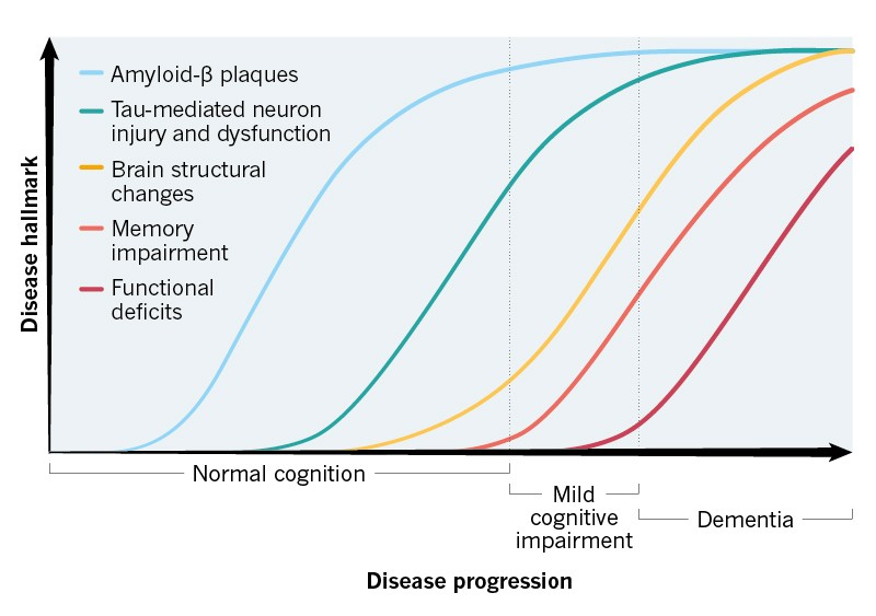 Changes in the hallmarks of Alzheimer's disease as the condition progresses.