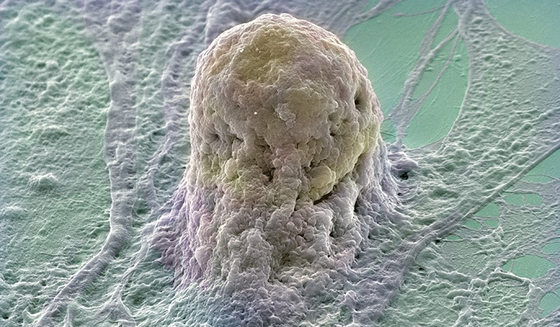 SEM image of a single human embryonic stem cell (gold) growing on a layer of supporting fibroblast cells (purple and green).