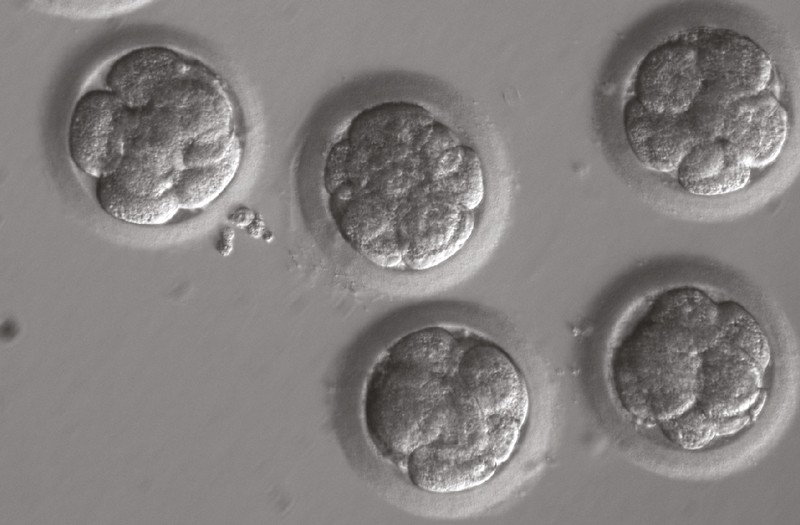 Greyscale microscope image showing five CRISPR-CAS9 injected eight-cell embryos