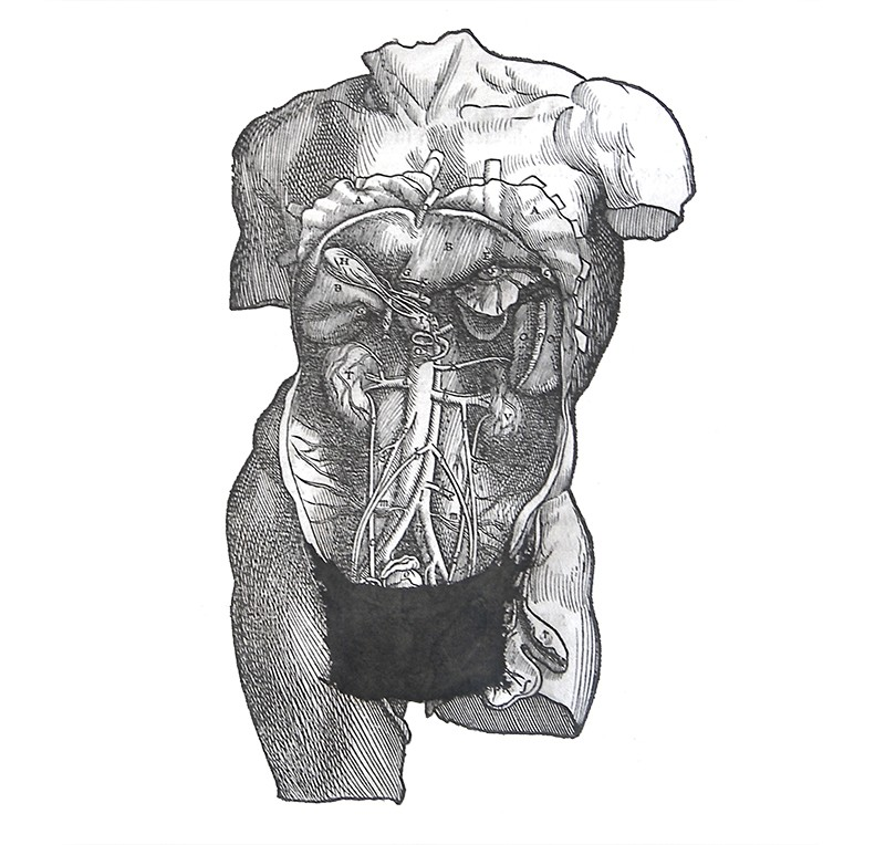 A censored male torso illustration with a drawn on 'modesty apron' covering the genital area.