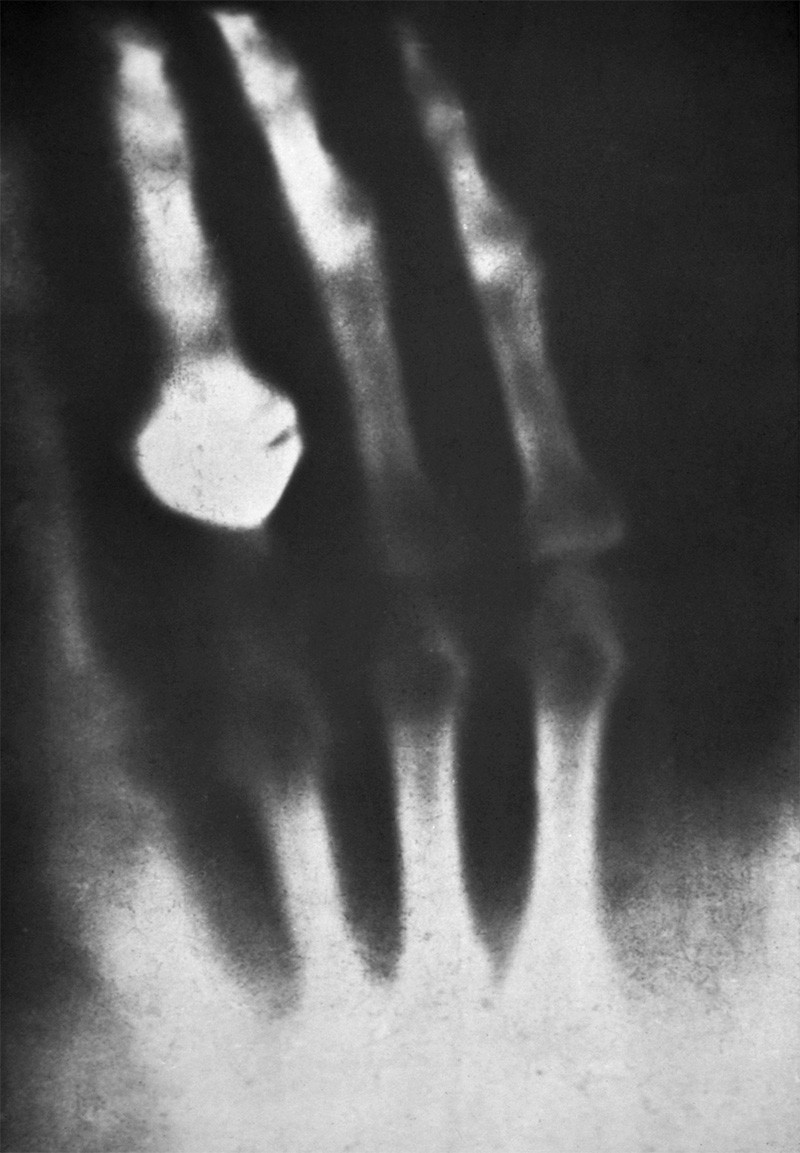Image showing first x-ray of a human in 1895
