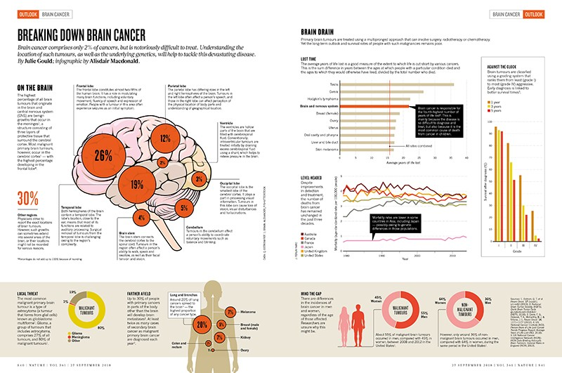Breaking down the epidemiology of brain cancer