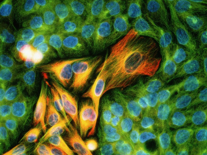 Immunofluorescent Light Micrograph of melanoma cancer cells