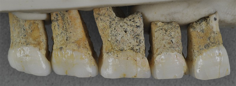 5 right upper teeth of the Homo luzonensis individual CCH6