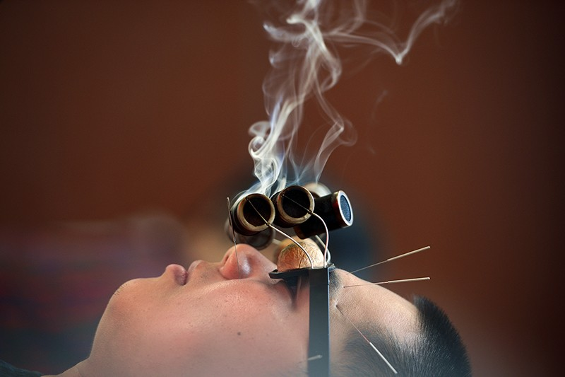 A man wearing 'walnut' glasses is treated with smoking wormwood to relieve his oculomotor paralysis.