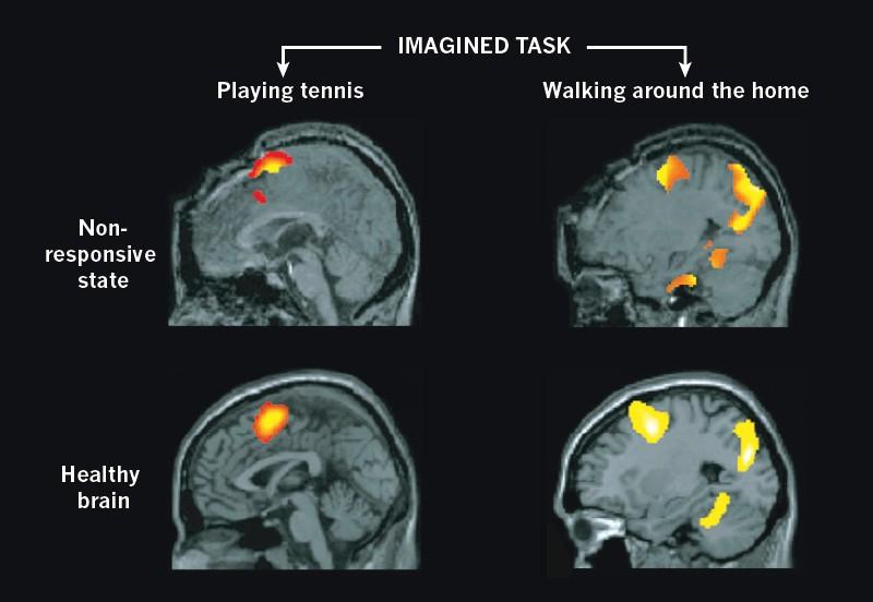 Decoding The Neuroscience Of Consciousness
