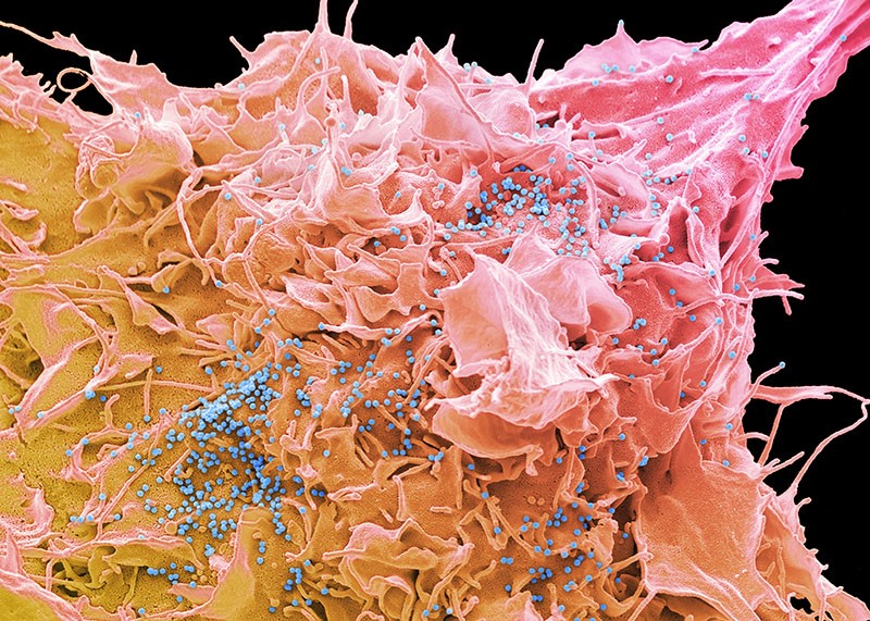 Coloured scanning electron micrograph of an HIV infected 293T cell