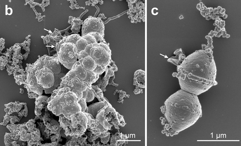 Scanning electron micrographs of archaeon Candidatus 41 Prometheoarchaeum syntrophicum strain MK-D1