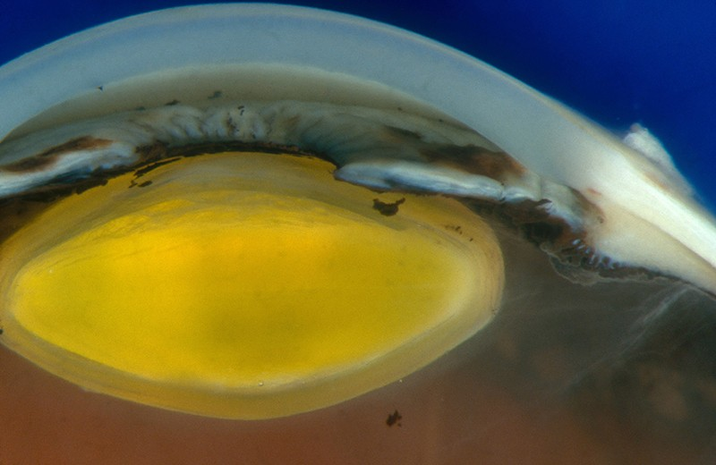 Anterior segment of human eye showing cornea, iris, and lens.