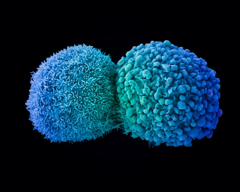 Lung cancer cells dividing, coloured scanning electron micrograph (SEM).