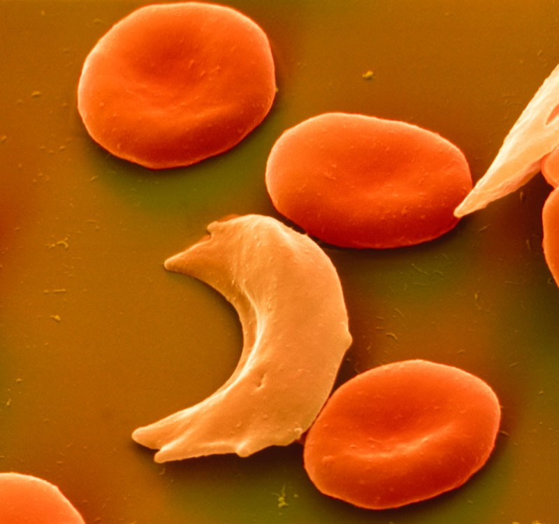 Sickle cell anaemia.