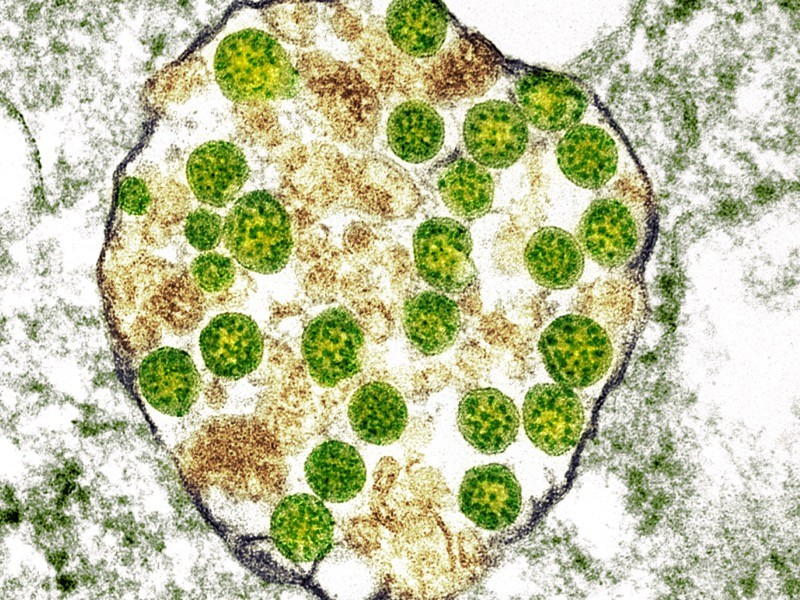 Cell infected with Covid-19 coronavirus particles, TEM.
