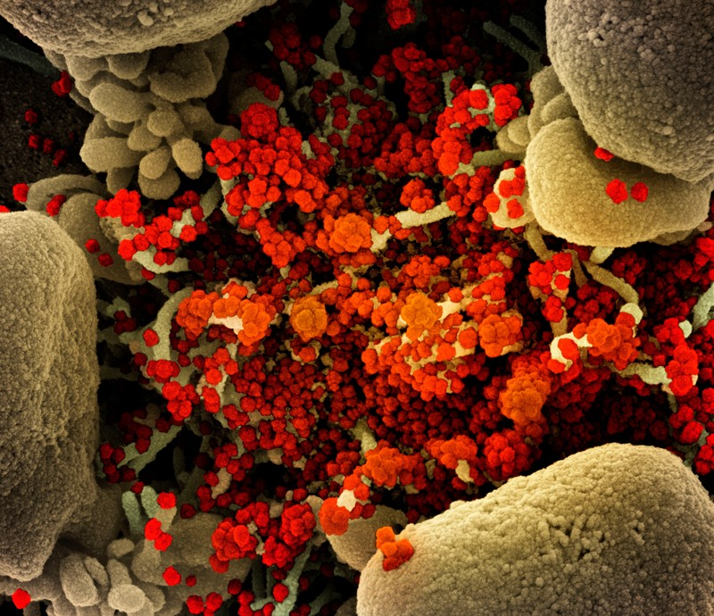 Coloured scanning electron micrograph of SARS-CoV-2