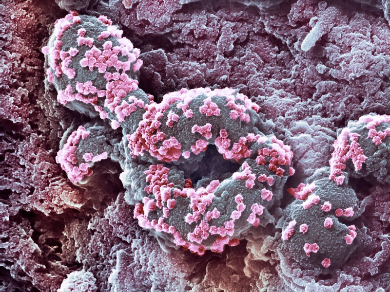 Coloured scanning electron micrograph showing a cultured cell infected with SARS-CoV-2 virus particles