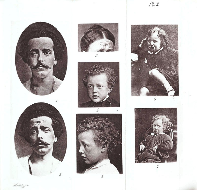 'Expressions of Grief' photos from 'The Expression of the Emotions in Man and Animals' by Charles Darwin