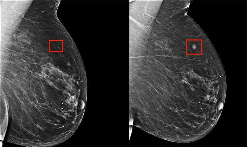 Two scans of breast cancer