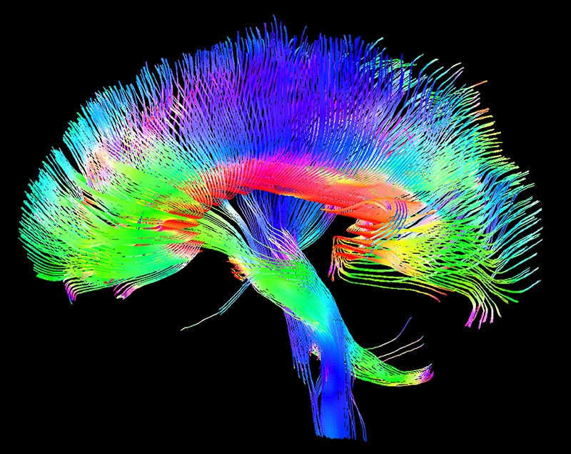 Side view of a coloured 3D scan of the white matter pathways of the human brain.
