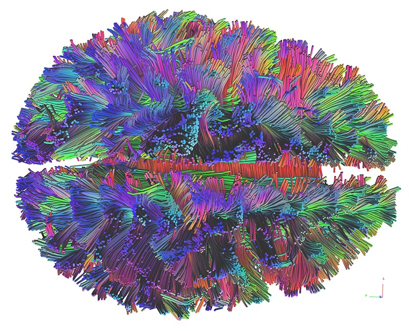 White matter connections in varying colours for a single subject, as measured using diffusion-weighted MRI.