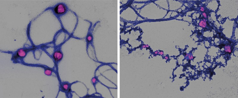 Two images showing collagen breaking down