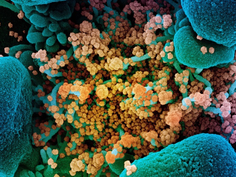 SEM of SARS-CoV-2 coronavirus particles (orange) on an apoptotic cell (blue) from a US patient sample. SARS-CoV-2.
