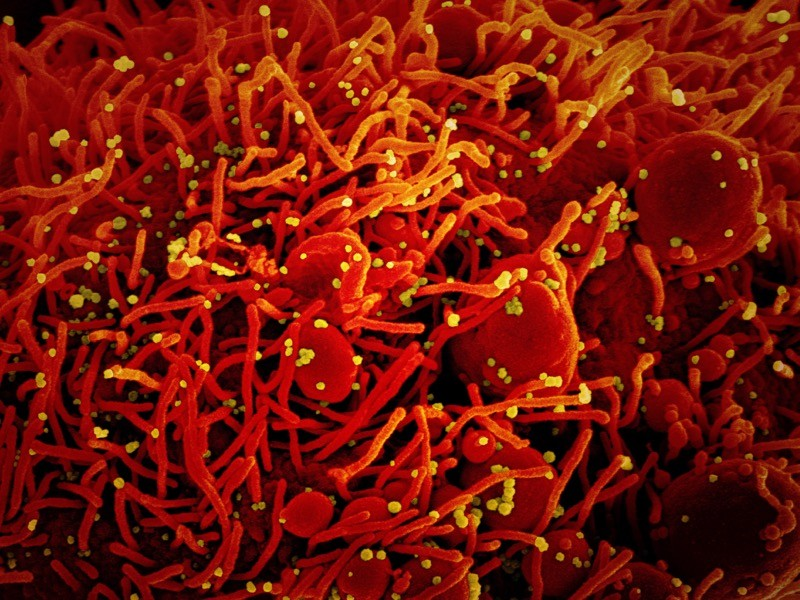 SEM of SARS-CoV-2 coronavirus particles (yellow) on an apoptotic cell (red) from a US patient sample.