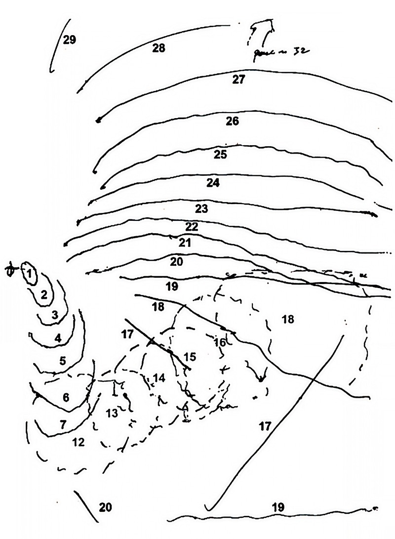 Line drawing showing the nature of the aura visual disturbance over time