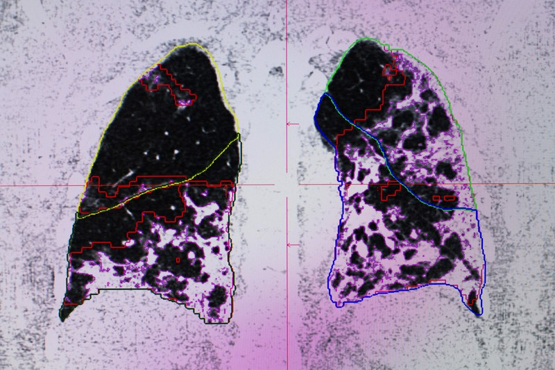 An MRI scan of a COVID-19 patients lungs showing areas of black and white