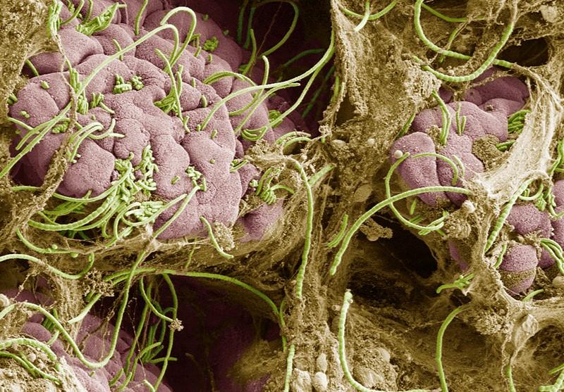 Micrograph of segmented filamentous bacteria sprouting filaments