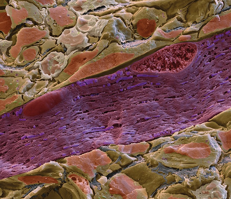 Coloured scanning electron micrograph of a section through muscle tissue, showing the interior of a mitochondrion stained purple