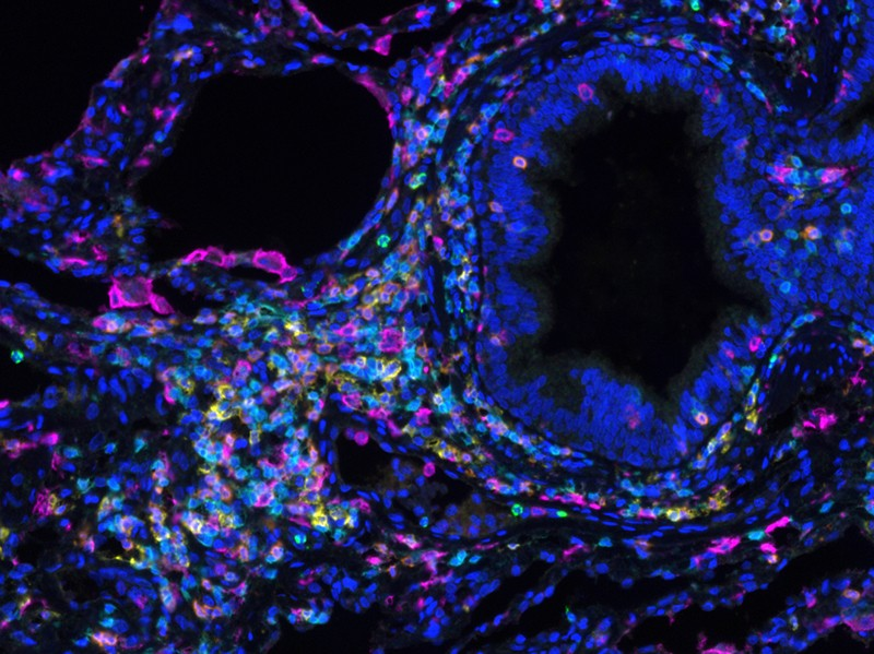 Micrograph of Spatial organization of immune cells within the lung