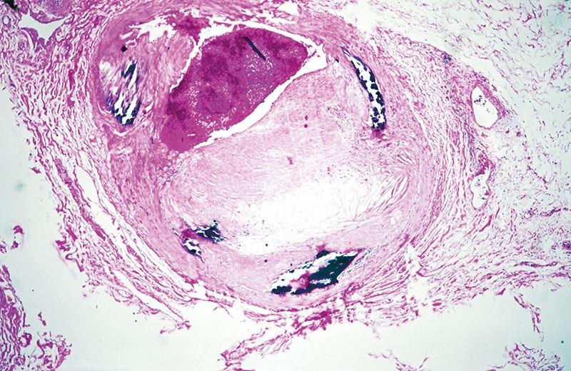 Kalınlaşmış duvarları gösteren bir arterin görüntüsü