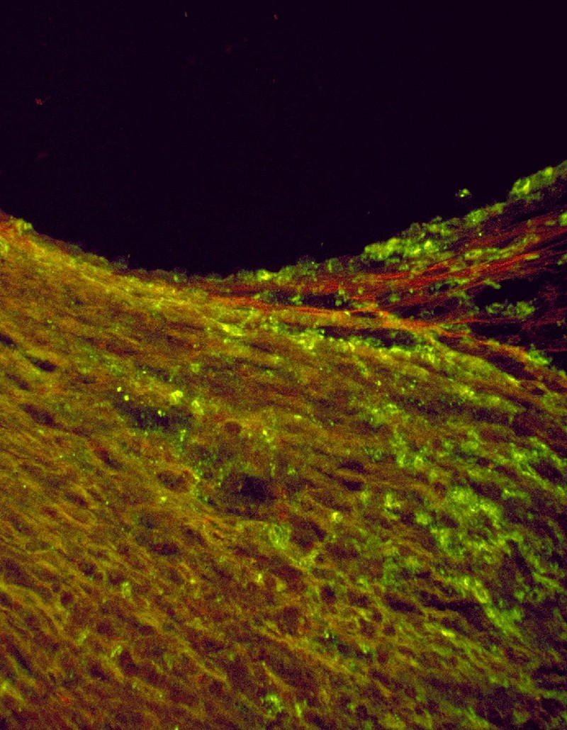 Bir aterosklerotik plağın immünofloresan görüntüsü