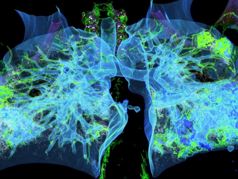 Color computed tomography (CT) of human lungs.