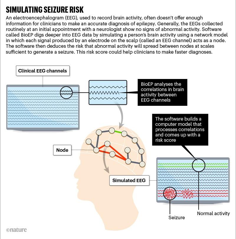 Simulating seizure risk