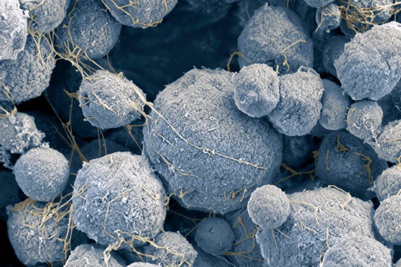 Colored scanning electron micrograph of Methanosarcina mazei archaea has the appearance of irregular round hairballs