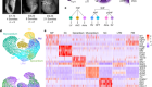 Single-cell analysis of cardiogenesis reveals basis for organ-level developmental defects