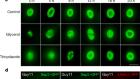 A sensor kinase controls turgor-driven plant infection by the rice blast fungus