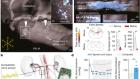 Neuroprosthetic baroreflex controls haemodynamics after spinal cord injury
