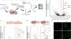 Neuronal programming by microbiota regulates intestinal physiology