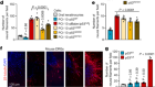 Loss of p53 drives neuron reprogramming in head and neck cancer